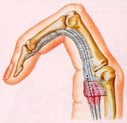Νόσος του εκτινασσόμενου δάκτυλου (Τrigger Finger)