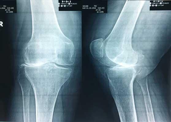 Τσίντζος Αρθροπλαστική Γόνατος - Ολική Αντικατάσταση Γόνατος